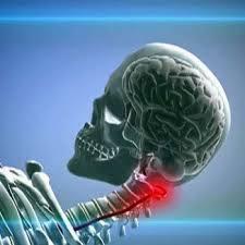 Гипоплазия позвоночных артерий симптомы, лечение, описание