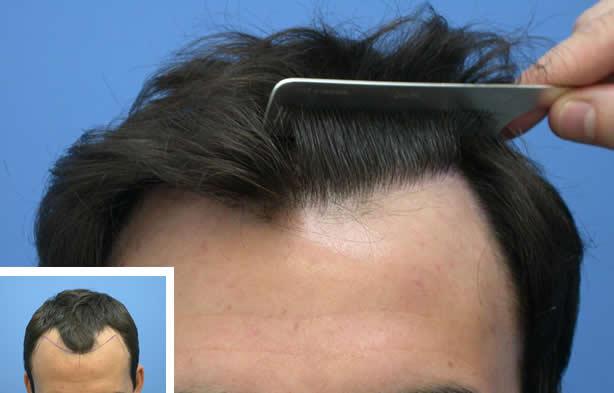 Как пересаживают волосы на голове