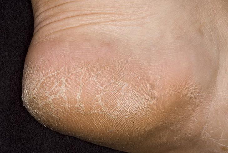 Чем лечить грибок на ногах при кормлении грудью